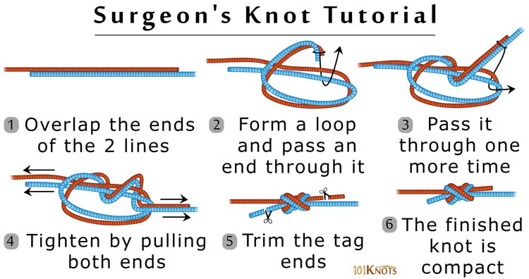 graphic regarding Knot Tying Guide Printable called Surgeons Knot Written content and Stage Through Move Guidelines